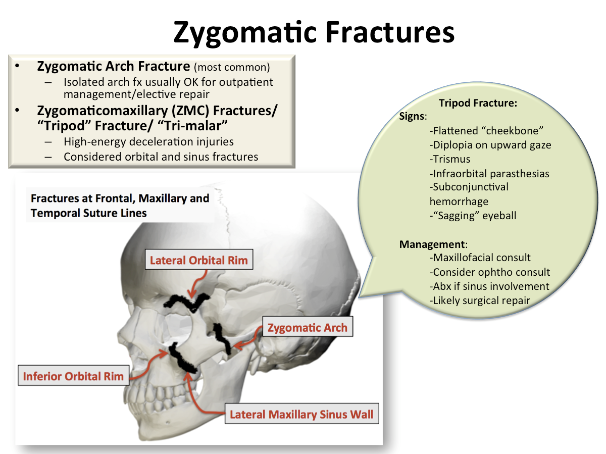 Back To Basics Zygomatic Fractures Em Daily